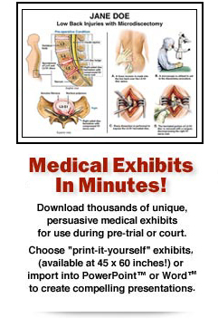 Medical Exhibits In Minutes